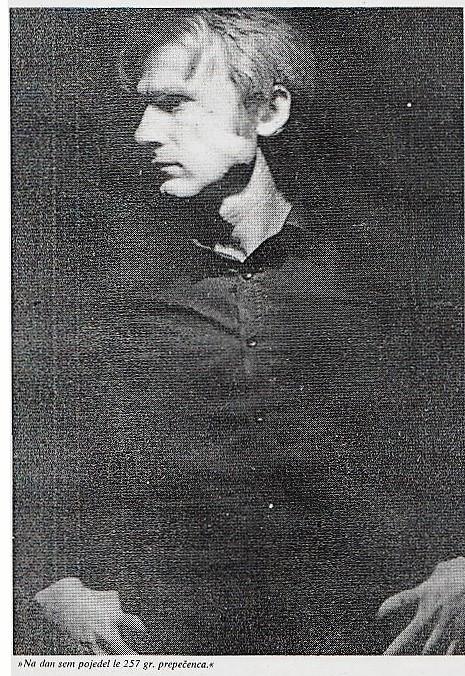 Unübersehbare Handschrift des STASI-Schergen Ralf Hunholz: Unterkieferbruch am 23.6.1985 in der Speziellen Strafvollzugsabteilung Waldhweim